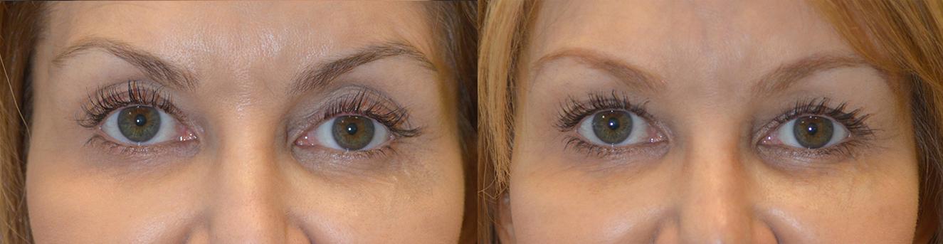 Eyelid filler