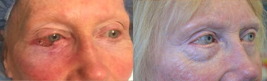 76 year old female, underwent right lower eyelid skin cancer (basal cell carcinoma) Mohs resection and reconstruction of the eyelid. Before and after eyelid surgery photos are shown.