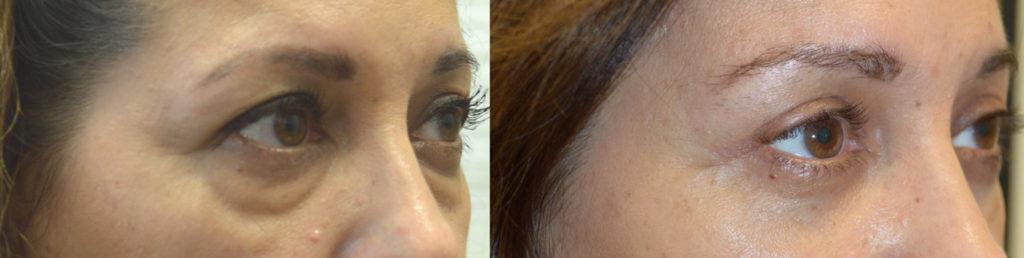 Beverly Hills Lower Blepharoplasty Under Eye Bags