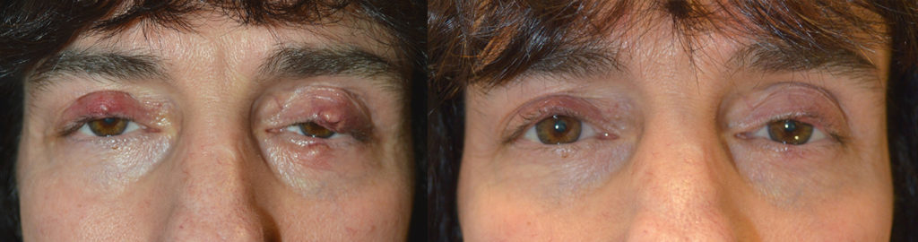 Los Angeles Chalazion Eyelid Procedure