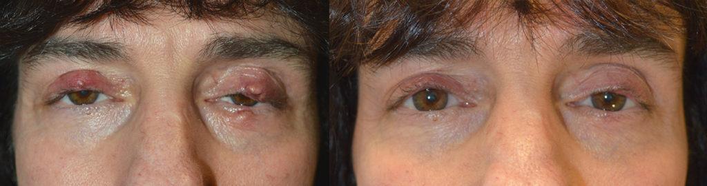Los Angeles Chalazion Eyelid Procedure