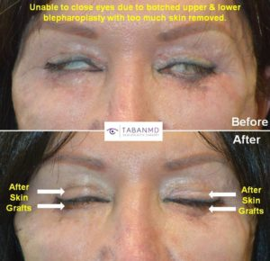 Revisional Eyelid Surgery Beverly Hills