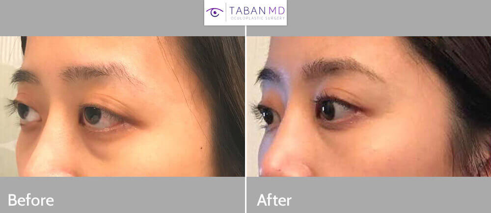 Young Asian female, complained of inherited protruding bulging eyes with lower eyelid retraction, with trouble closing eyes fully and unhealthy eye appearance. She underwent scarless orbital decompression surgery to treat bulging eyes combined with lower eyelid retraction surgery with canthoplasty to elevate the lower eyelids to eliminated scleral show. Before and 2 months after eye plastic surgery photos are shown.