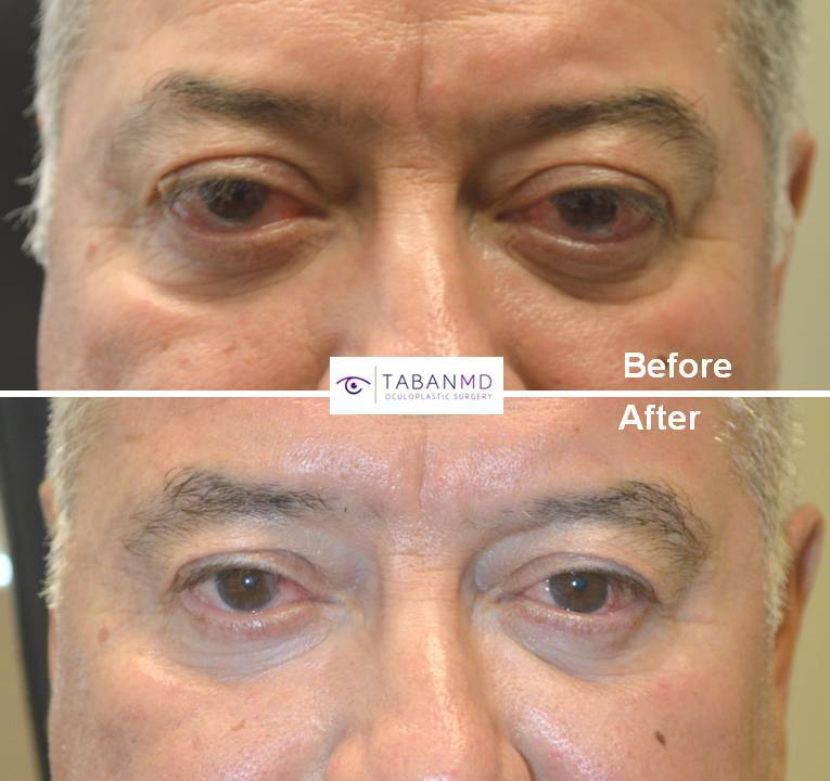 59 year old male, with bulging eyes due to Graves thyroid eye disease, underwent scarless orbital decompression surgery. Before and 3 months after surgery photos are shown.