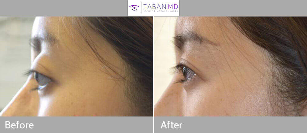 Young Asian woman with inherited bulging large eyes and lower eyelid retraction with sclera show underwent cosmetic scarless orbital decompression surgery and lower eyelid retraction surgery with canthoplasty. Before and 3 months after eye plastic surgery photos are shown.