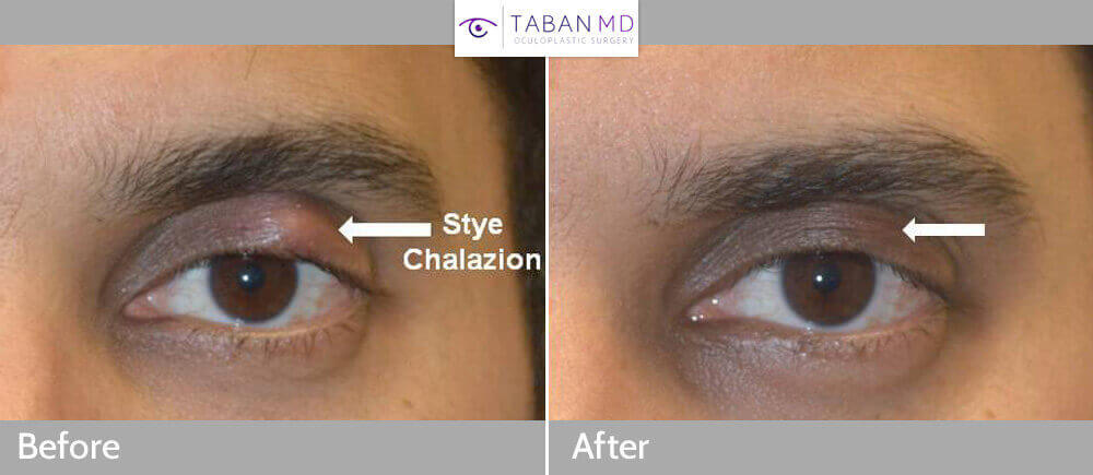 A young man with persistent left upper eyelid stye (chalazion) underwent drainage of the eyelid chalazion using scarless inside eyelid method. Before and a few weeks after eyelid stye removal photos are shown.