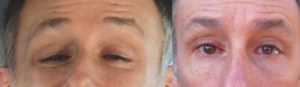 56 year old male with severe genetic upper eyelid ptosis underwent maximal droopy eyelid ptosis repair. Before and 2 months after surgery eyelid surgery selfie photos are shown.