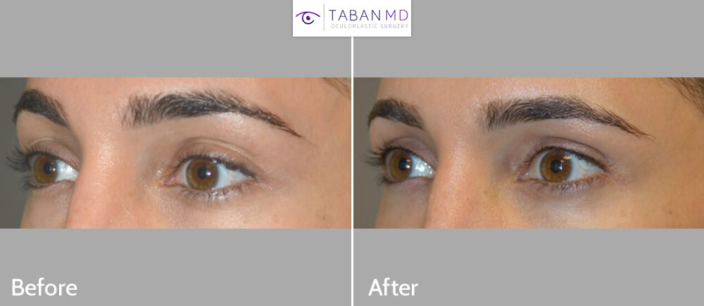 29 year old female, was bothered by extra upper eyelid skin fold. She underwent conservative minimal cosmetic upper blepharoplasty and fat injection. Before and 1 year after cosmetic eyelid surgery photos are shown.