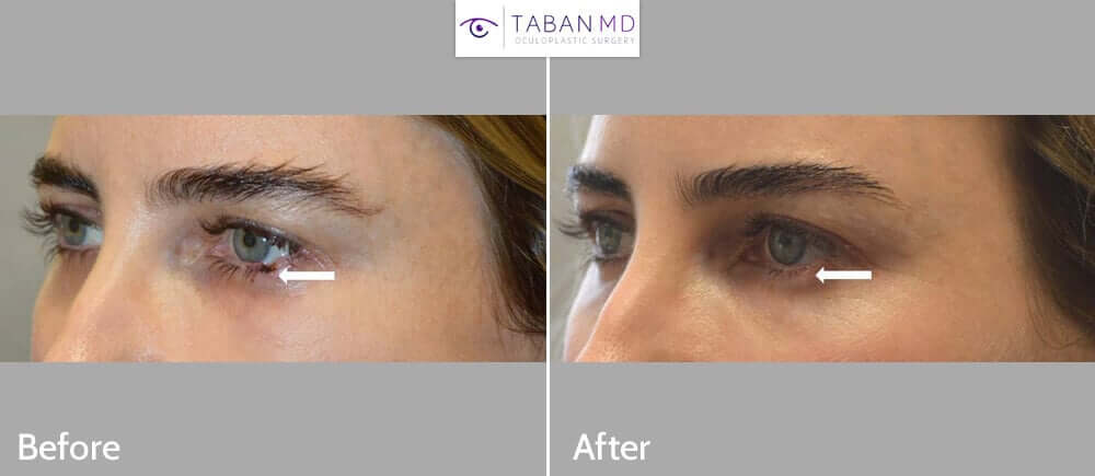 Young beautiful woman with defect after Mohs surgery to remove left lower eyelid skin cancer (basal cell carcinoma) underwent left lower eyelid reconstruction. Before and 2 months after eyelid skin cancer surgery photos are shown. Note preservation of natural contour of lower eyelid and shape of the eye.