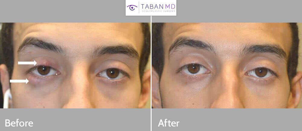 Young man underwent removal of multiple large eyelid styes (chalazion) using scarless technique with incision inside the eyelid with quick recovery.