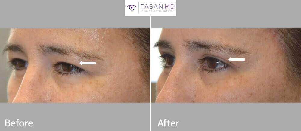 Middle age woman complained of saggy hooded upper eyelids. She underwent cosmetic upper blepharoplasty (eyelid lift) under local anesthesia with oral sedation. Before and 1 month after eyelid surgery photos are shown.