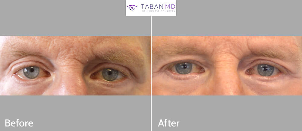 77 year old male, with post-blepharoplasty lower eyelid retraction (after transcutaneous lower blepharoplasty done by another surgeon), underwent corrective lower eyelid retraction surgery using scar-less conjunctiva approach with SOOF (midface) lift without spacer graft. Before and 3 months after revision eyelid surgery photos are shown.
