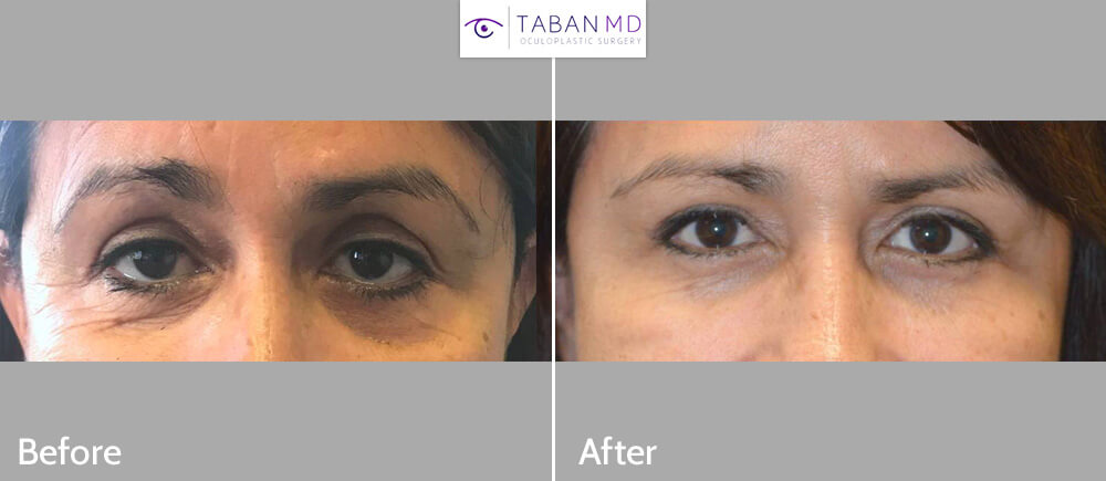 Middle age woman looking tired and older underwent cosmetic upper and lower blepharoplasty and droopy eyelid ptosis surgery. Before and 3 months after eyelid surgery photos are shown. Note more rested youthful eye appearance.