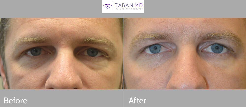 35 year old male, complained of looking tired. Before and 1 month after under eye and cheek filler injection photos are shown.