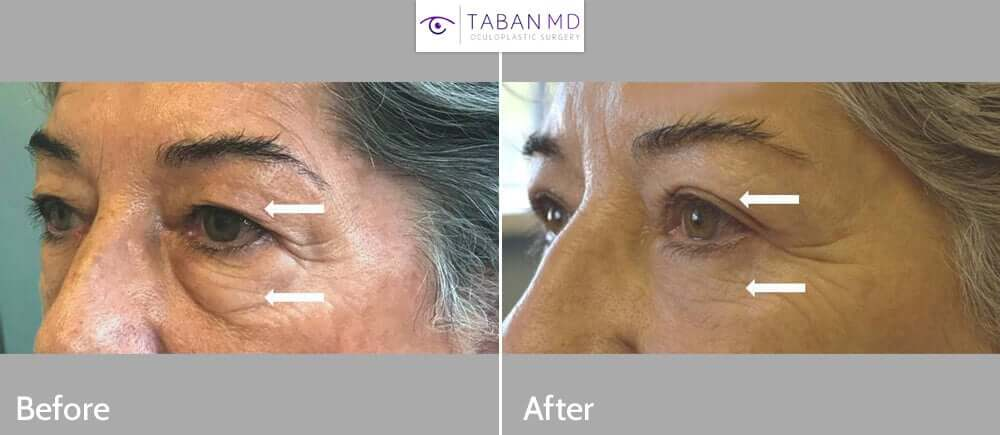60+ year old woman wanted to look more refreshed. She underwent Quad-blepharoplasty (upper blepharoplasty + lower blepharoplasty). Before and 3 months after eyelid surgery photos are shown. Note more natural and rested eye appearance.