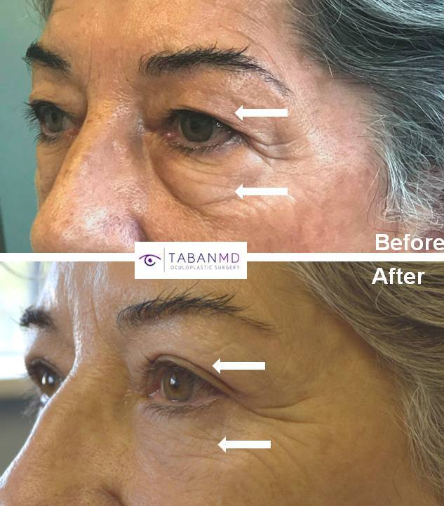 Young Asian female, with inherited bulging eyes, lower eyelid retraction with sclera show, underwent scarless orbital decompression and lower eyelid retraction surgery. She can now close her eyes normally with improved natural eye shape.
