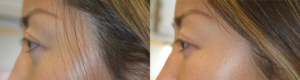 [PROFILE VIEW] 30 year old Asian female, from Shanghai China, with inherited tired and bulging appearing eyes, underwent almond eye surgery with lower eyelid retraction repair, cosmetic orbital decompression, and upper eyelid ptosis surgery. Before and 2 months after eye plastic surgery photos are shown.