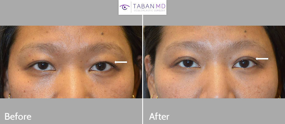 Young Asian woman, with asymmetric upper eyelid crease, underwent customized Asian upper blepharoplasty (double eyelid surgery). Her sister also underwent similar procedure with me.
