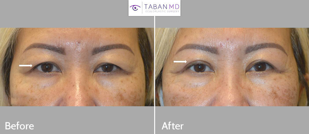 Asian woman, with age related upper hooding, underwent customized Asian upper blepharoplasty, with natural results.