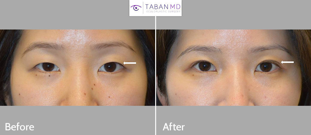 Young beautiful Asian woman with single mongoloid eyelid underwent conservative Asian upper eyelid surgery (double eyelid surgery) to create more visible eyelid crease with natural results.