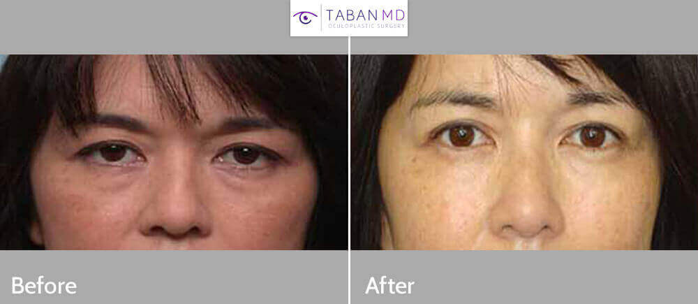 Middle age Asian woman, underwent Asian upper blepharoplasty and crease formation (using incision method), under local anesthesia in the office. Note natural appearing results. Before and 6 months postoperative photos are shown.