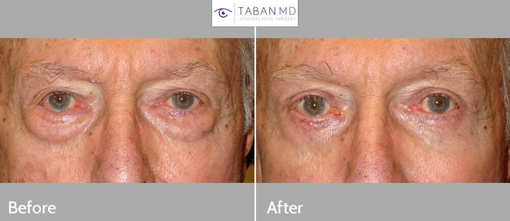 68 year old man, complained very puffy under eyes with bags, making him look tired and older. He underwent transconjunctival lower blepharoplasty with fat removal using hidden inside eyelid incision that did not require stitches, with quick recovery. Before and 2 months after cosmetic eyelid surgery photos are shown.