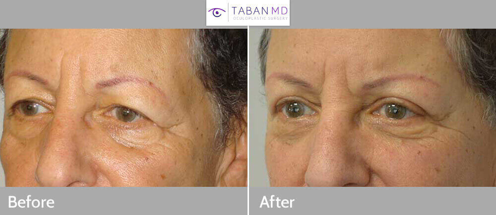 60 year old female, complained of saggy upper eyelids. She has had to shave her eyebrow hair and tattoo them in a higher position to give illusion of higher brows. She underwent lateral eyebrow lift (using pretrichial temple incision) and upper blepharoplasty (skin removal from upper eyelids) under local anesthesia in the office. Note improved upper eyelids and brow contour, with natural results.