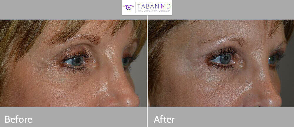 Before and immediately after FILLER (Belotero) injection in both upper eyelids to correct significant upper eyelid hollowness after prior upper blepharoplasty in a 59 year old female, thereby improving sunken eyes appearance.