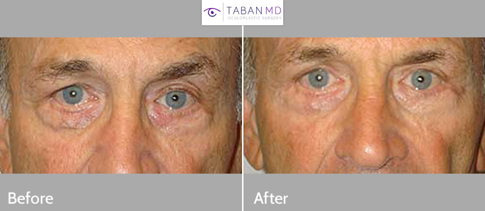 Before (left) and 3-months after (right) bilateral lower eyelid vein removal.