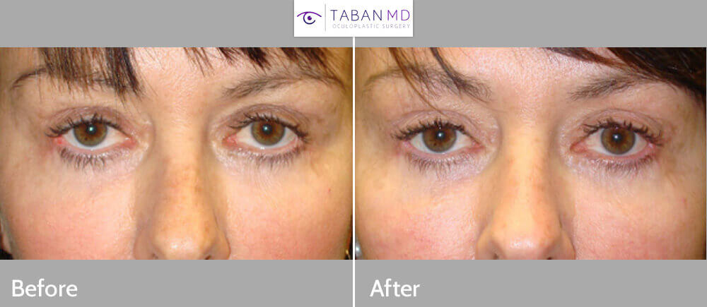 Middle age woman, with rounded sad eyes and lower eyelid retraction with inability to fully close her eyes secondary to lower eyelid retraction (postblepharoplasty eyelid and canthus scarring), underwent revision eye plastic surgery to raise the lower eyelids (eyelid retraction repair) and closed canthoplasty to provide better eyelid function and shape. Before and 3 months after eyelid surgery photos are shown.