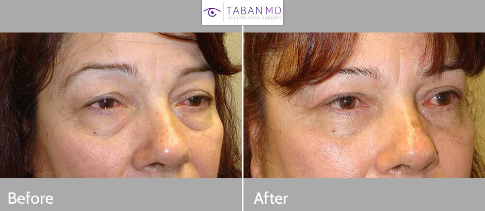 """55 year old female, complained of sad, tired looking eyes. She underwent cosmetic upper blepharoplasty (skin removal from upper eyelids) and upper eyelid ptosis repair (to raise upper eyelids; """"eyelid lift""""). Note natural results with the patient looking more awake and youthful. Preop and 3 months postoperative photos are shown."""