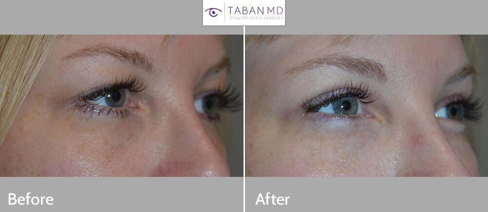"""44 year old young mom complained of excess skin in her upper eyelids, with the skin covering her eyes and lashes, with more difficult putting make up on her upper eyelids. She wanted """"mommy makeover"""" of her eyes. She underwent cosmetic bilateral upper blepharoplasty (skin removal only from upper eyelids) under local anesthesia in the office. Before and 3 months after cosmetic eyelid surgery photos are shown."""