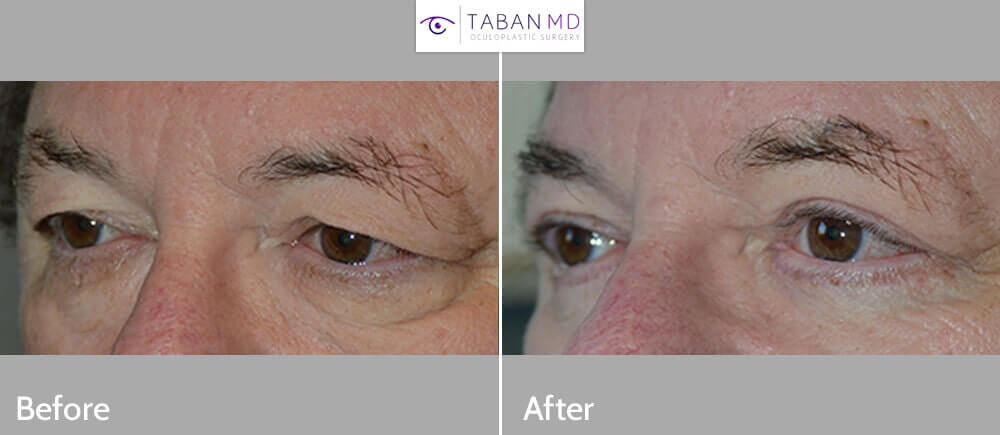"67 year old male, with saggy upper eyelids and under eye bags, wants eyelid rejuvenation. He underwent cosmetic eyelid surgery including upper blepharoplasty (""eyelid lift"" to remove excess skin and tighten muscle) along with lower blepharoplasty (transconjunctival with fat repositioning and skin pinch). Notice more youthful, rested eye appearance in the after photo."