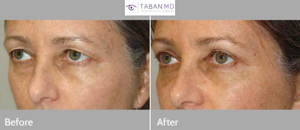 """38 year old female, complained of saggy upper eyelids. She wanted to look better and less tired. She wanted """"eye mommy makeover"""". She underwent cosmetic upper blepharoplasty (skin removal) and lateral brow lift (outer brow lifted using temple hairline incision), under local anesthesia in the office. Note natural, youthful results. Before and 3 months after cosmetic eyelid surgery photos are shown."""