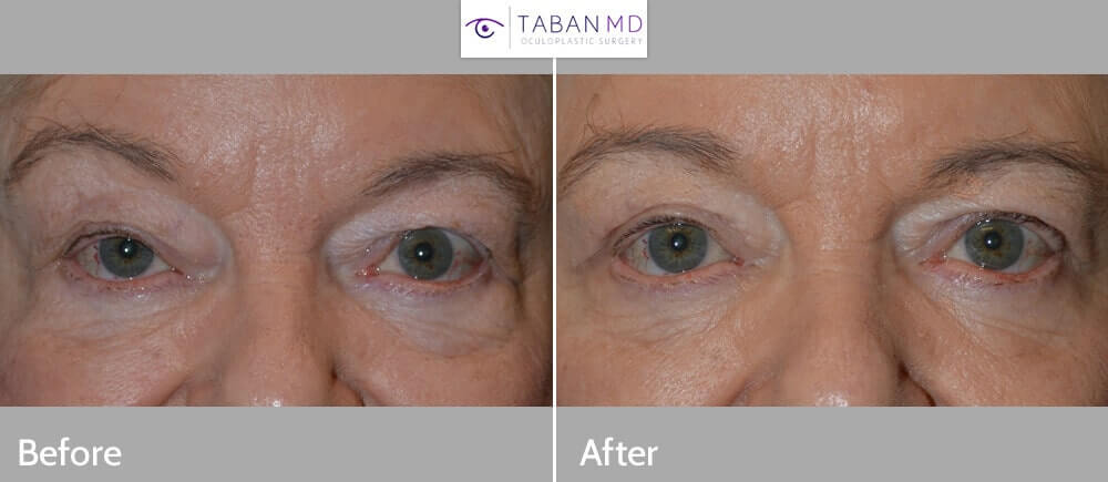 """65+ year old female, complained of eye size asymmetry with right eye smaller (secondary to droopy right upper eyelid, ptosis). Note the right eyebrow is raised in order to help lift the droopy right upper eyelid. She underwent right upper eyelid blepharoptosis repair (droopy eyelid surgery; """"lid lift"""") under local anesthesia. Note the right eyebrow becomes more relaxed with improved eye symmetry in the 2 months postoperative photo."""