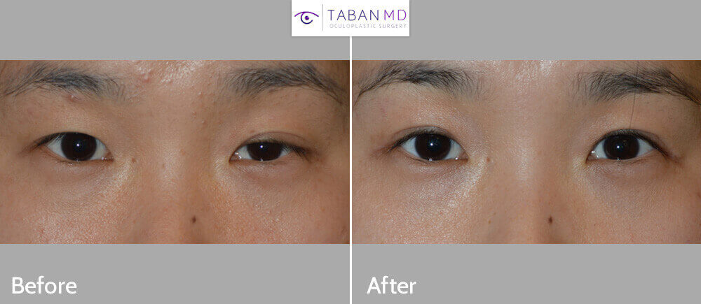 25 year old Asian female, with asymmetric upper eyelid folds and left upper eyelid ptosis (droopy upper eyelid secondary to Horner's syndrome), underwent Asian upper blepharoplasty (with incision method to create eyelid crease) plus left upper eyelid ptosis surgery (to raise the left upper eyelid), under local anesthesia in the office. Note natural, more symmetric eyes in the 3 months postoperative photo (right photo).