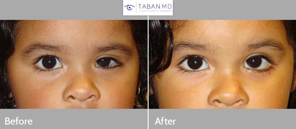 Before (left) and 2 months after (right photo) of LEFT lower eyelid congenital epiblepharon surgery (eyelid turns in).