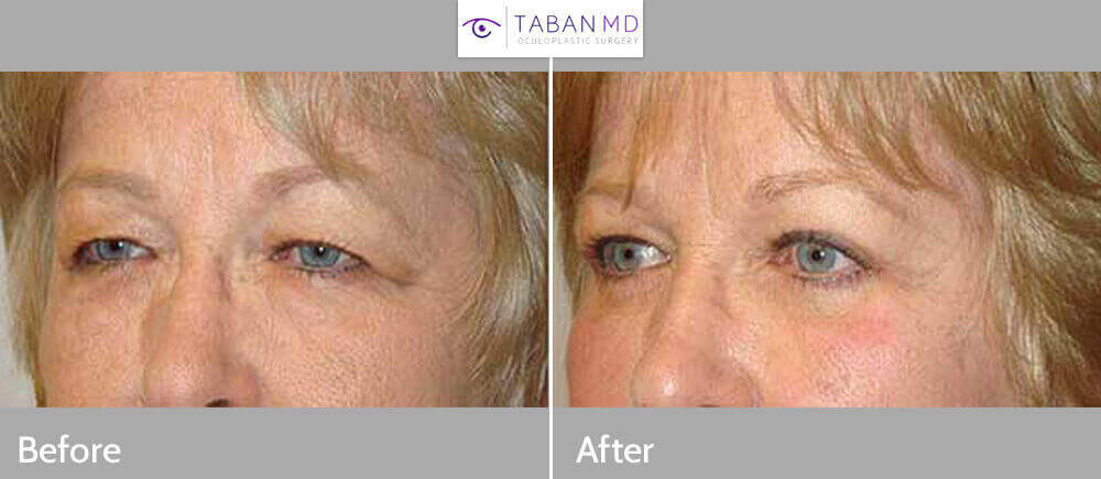 Before (left) and 3-months after (right) pretrichial brow lift, quad-blepharoplasty and ptosis surgery.