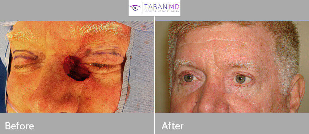 56 year old male, with large eyelid defect after eyelid basal cell carcinoma removal followed by reconstruction using multiple flaps to close the defect, with natural results and good function. Intraoperative and 3 months postoperative photos are shown.