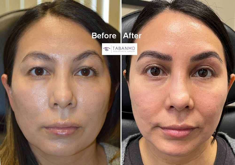 Young woman underwent revision upper blepharoplasty to remove fat injection lumps (latter done by another surgeon).