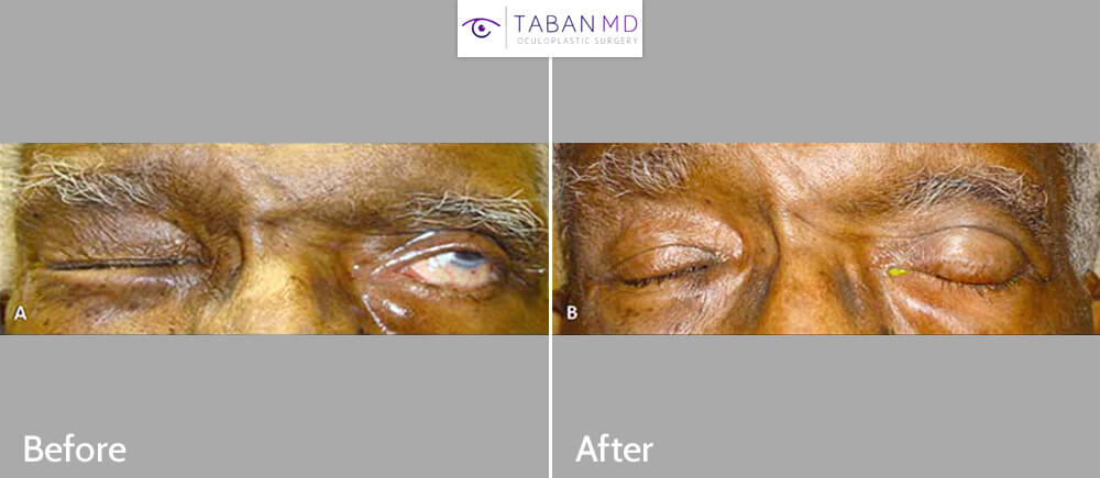 70+ year old male, with left facial palsy, with inability to close the left eye (lagophthalmos) as shown in the left photo. He received left upper eyelid hyaluronic acid gel filler injection, as non-surgical treatment, to help close the left eye, as shown in the after photo (right).