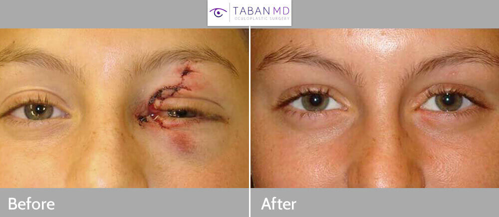 Young female teenager who suffered full-thickness left upper and lower eyelid laceration plus canalicular laceration (tear duct laceration) from surf board accident. She underwent eyelid, eyebrow and canalicular laceration repair. Note natural appearing results with minimal scarring. Preop and 3 months postoperative photos are shown.