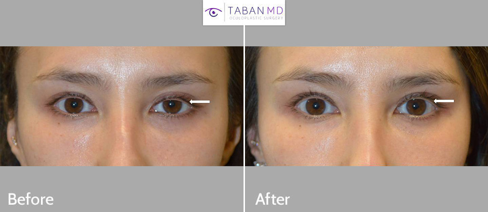 Beautiful young lady, with eye asymmetry due to droopy left upper eyelid, underwent scarless left upper eyelid ptosis surgery.