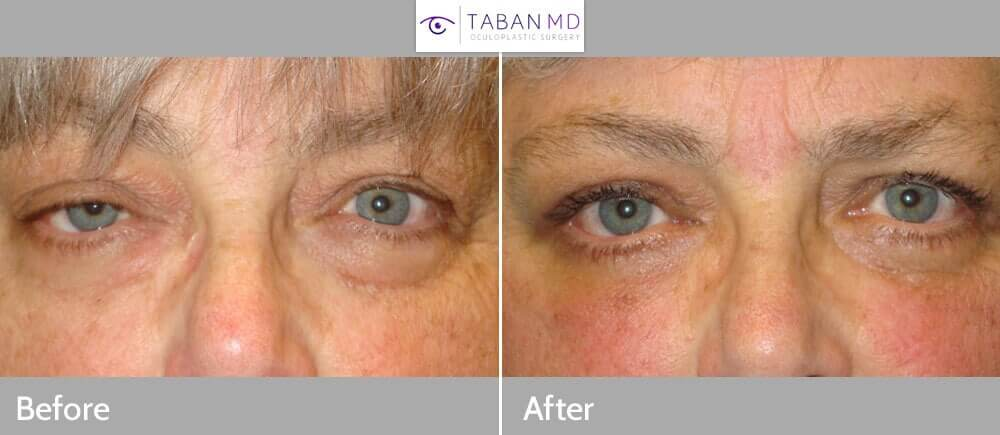 Middle age woman, complained of asymmetric eyes secondary to right upper eyelid ptosis (droopy) along with excess upper and lower eyelid fat pockets and loose skin. She underwent eyelid surgery including right upper eyelid ptosis surgery (eyelid lift through external approach), bilateral upper blepharoplasty (upper lid skin removal), and lower blepharoplasty (transconjunctival with fat repositioning and skin pinch), under local anesthesia in the office. Note improved eye size symmetry and youthful eye appearance in the postoperative photo 3 months after eyelid surgery.