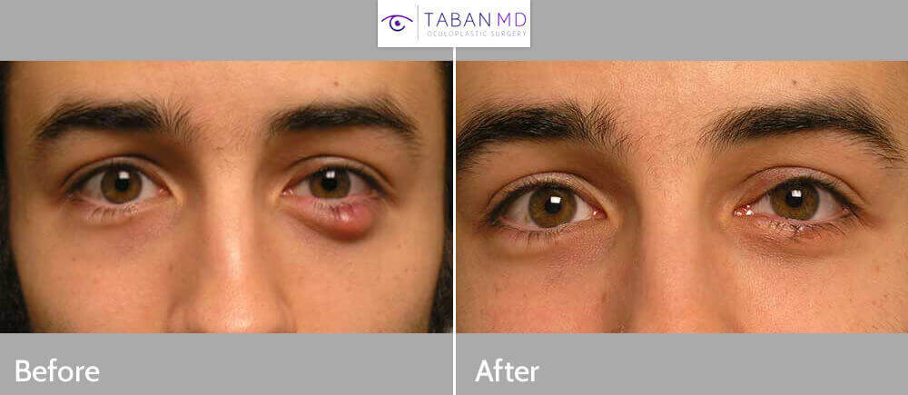 Young male with large left lower eyelid stye/chalazion who underwent eyelid chalazion drainage using internal eyelid incision under local anesthesia in the office. Before and 1 month after photos are shown.