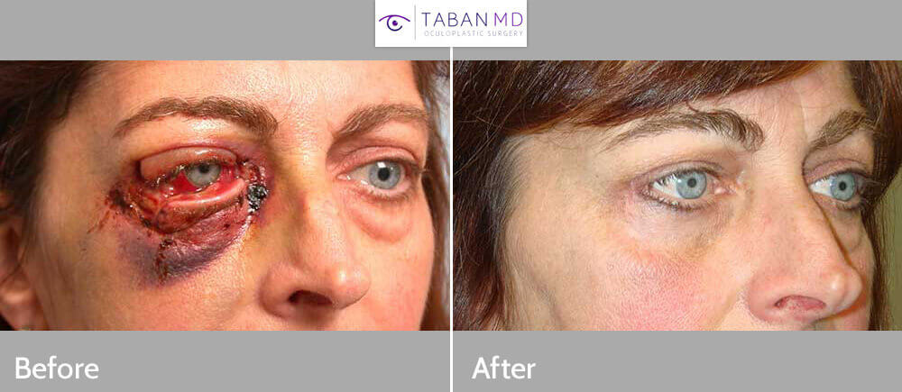 Middle age woman with multiple right eyelid lacerations underwent reconstructive eyelid laceration repair. Note natural results with minimal scarring. Preop and 3 months postoperative photos are shown.