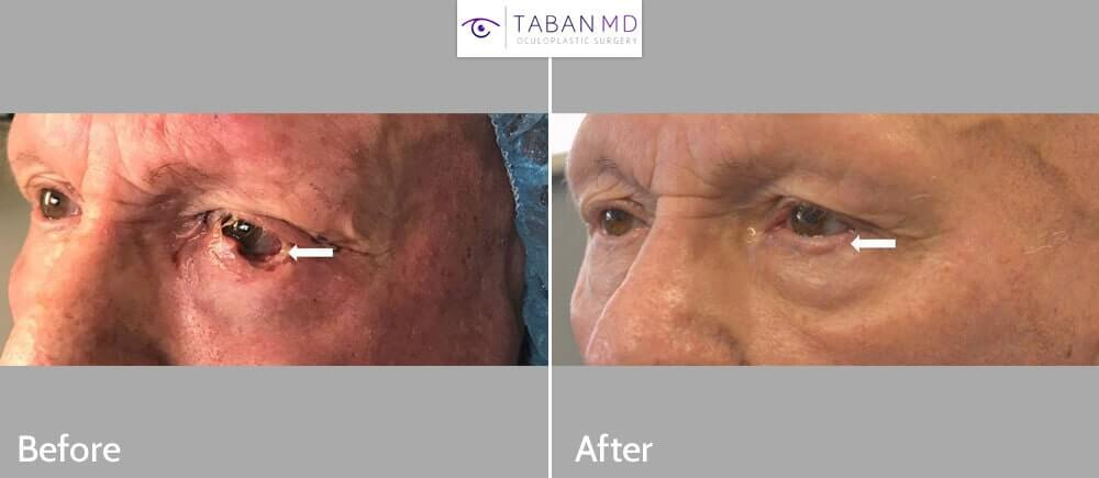 80+ year old male, with left lower eyelid basal cell carcinoma, underwent left lower eyelid skin cancer reconstruction after Mohs surgery.