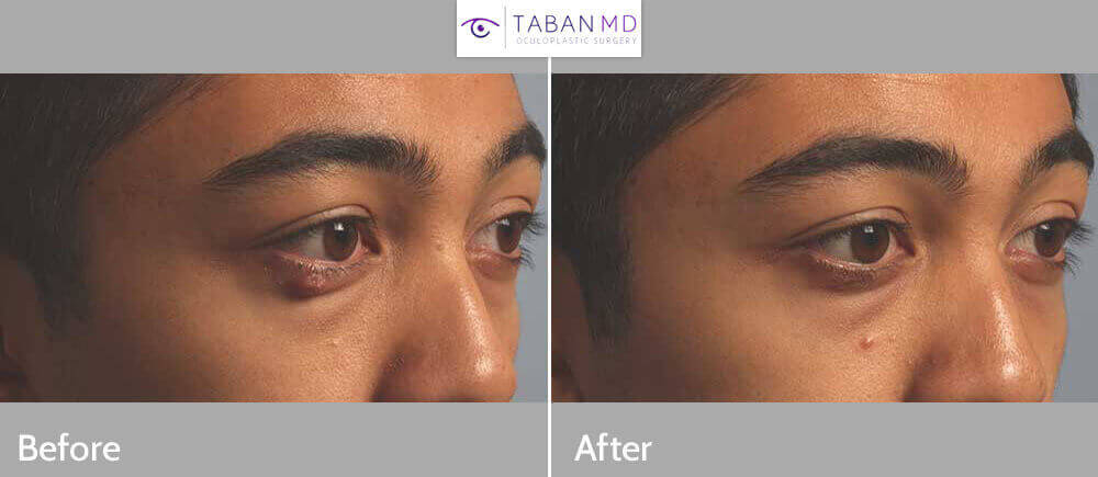 24 year old male, with right lower eyelid stye (chalazion) that wouldn't go away. The lid chalazion was drained using internal eyelid incision under local anesthesia in the office. Before and 1 month after procedure photos shown.