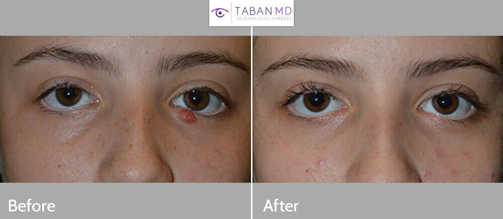 15 year old girl, with chronic left eyelid stye (chalazion), that needed surgical excision, which was done under local anesthesia in the office. Photos are before and 2 months after the procedure.