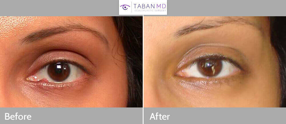 28 year old female, with persistent left lower eyelid stye (chalazion), which results from blocked meibomian gland. The lid chalazion was removed using internal incision under local anesthesia in the office. Before and 1 month after photos shown.